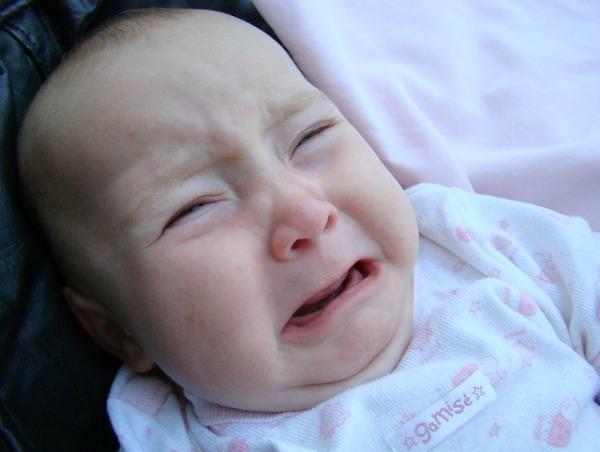 Children Eczema - Eczema in babies